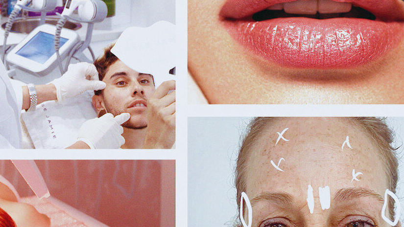 Immagine tratta da Skindecision: prima e dopo